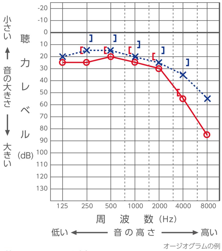 Audiogram-seijo-hochoki