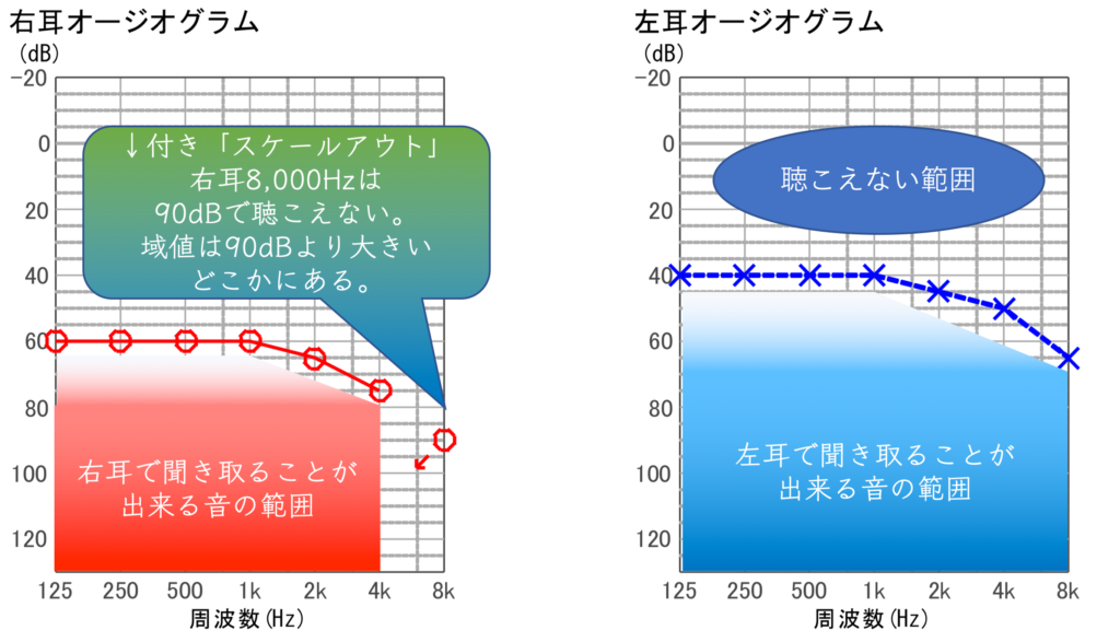 Audiogram Hearing range Seijo hearing aid